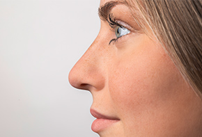 Nose - Our dosage systems for the preservative-free application of nasal sprays