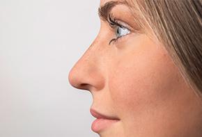 Nase - Unsere Dosiersysteme zur konservierungsmittelfreien Anwendung von Nasensprays und Nasentropfen