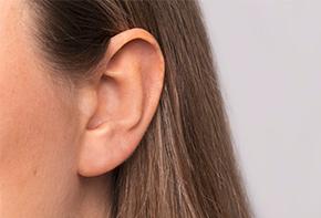 Ohren - Unsere Dosiersysteme zur konservierungsmittelfreien Anwendung von Ohrensprays