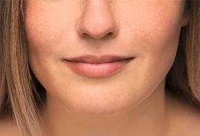 Mund und Rachen - Unsere Dosiersysteme zur konservierungsmittelfreien Anwendung von Mund- und Rachensprays